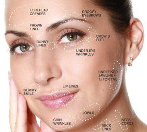 Treatment Areas for Botox